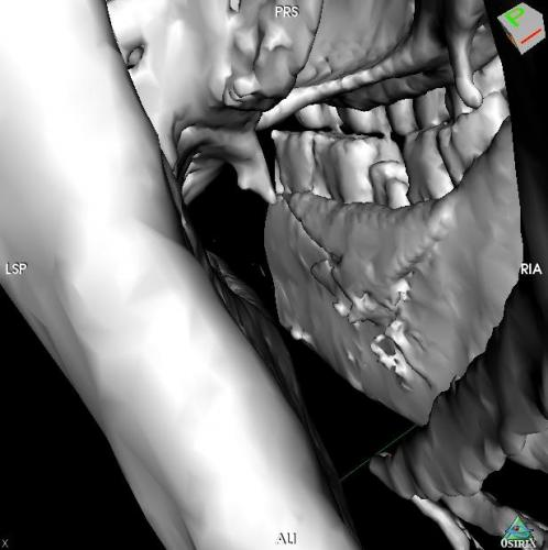 CT 3D Reconstruction of Equine Mandibular Fracture