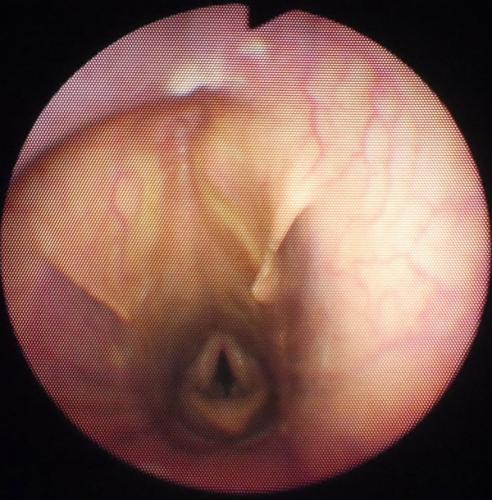View of the nasopharynx showing openings into guttural pouches (Flaps)